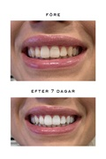 ORIGINAL DM Teeth Whitening